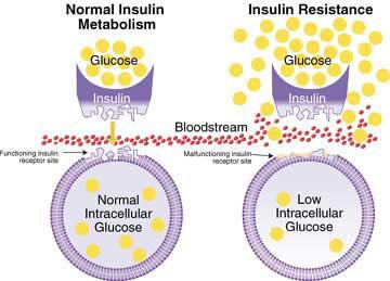 Insulinresistance-1.jpg