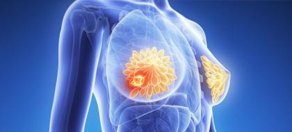 cancermama.jpg